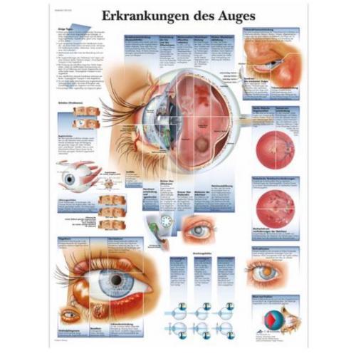 Lehrtafel - Erkrankungen des Auges